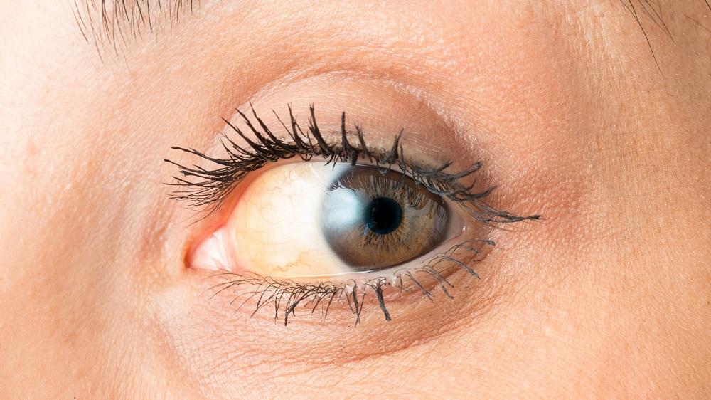 sclera discoloration